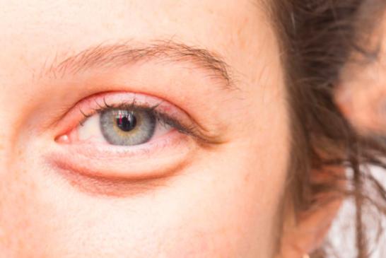 7 Cara Mudah Menghilangkan Kantung Mata