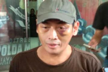 Polisi Dinilai Terburu-Buru Tetapkan Tersangka Dalam Kasus Penganiayaan Ninoy Karundeng