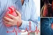 Segera Lakukan Pencegahan untuk Menghindari Serangan Jantung